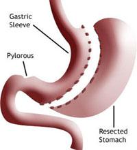 about gastric sleeve About Gastric Sleeve