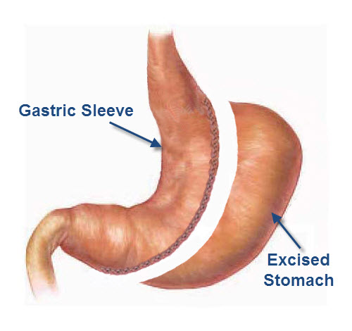 What is a Sleeve Gastrectomy What is a Sleeve Gastrectomy