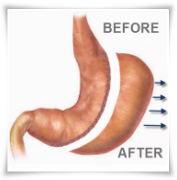 Can You Eat Regular Food After Gastric Sleeve