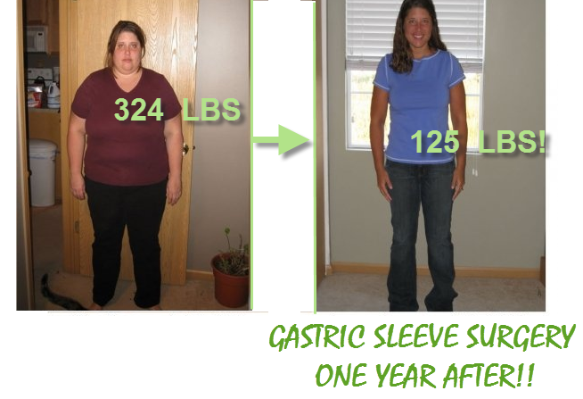 GASTRIC SLEEVE SURGERY FOR WEIGHT LOSS Gastric Sleeve Surgery before and after pictures